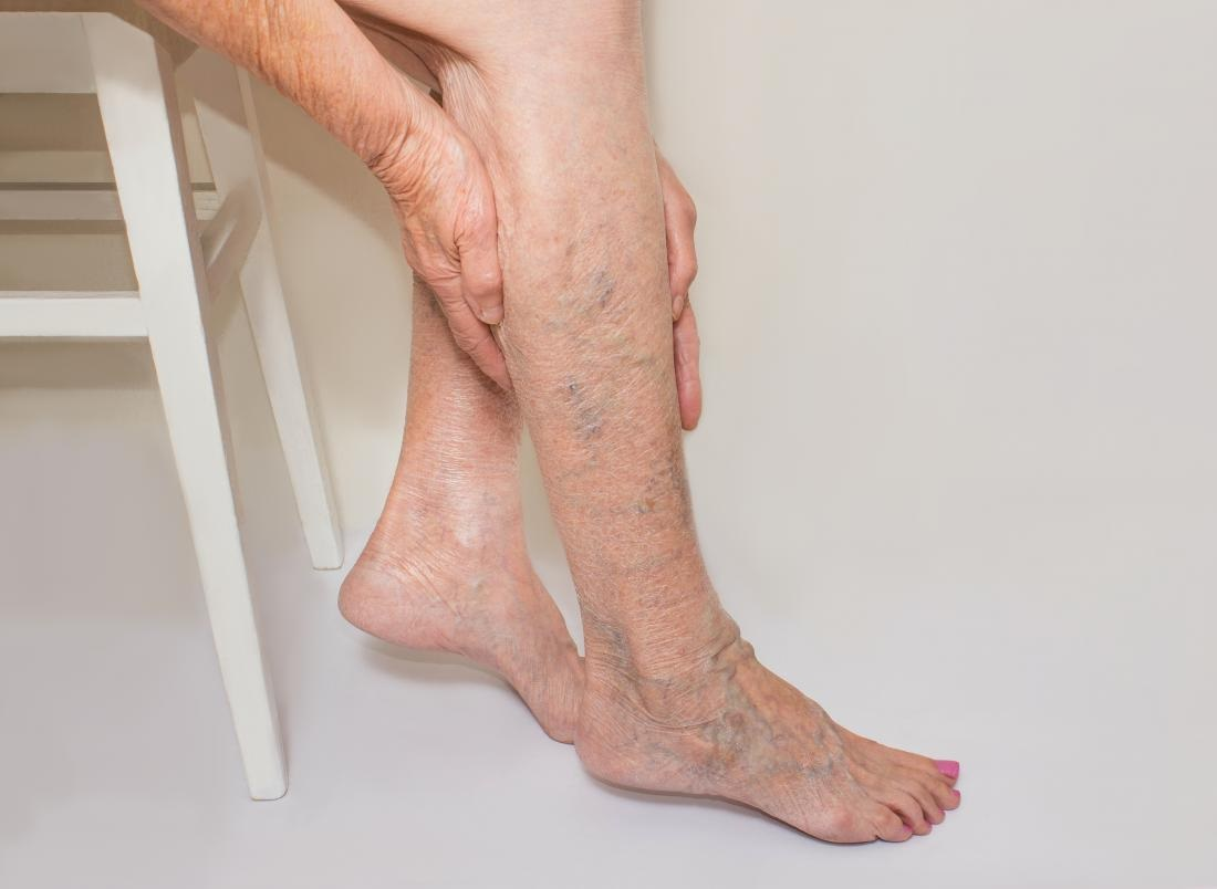 At Home Treatments for Varicose Veins