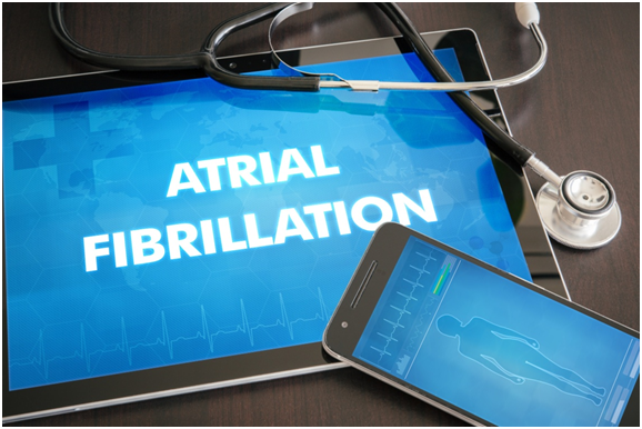 What is Atrial Fibrillation? Everything You Need to Know
