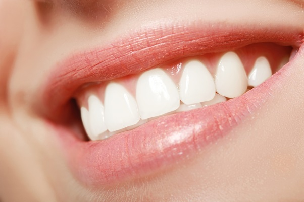Are There Any Side-Effects to Getting Veneers?