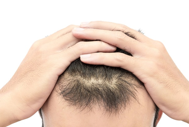 Toxic Stress: Untangling the Link between Anxiety and Hair Loss